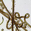 First records of Myriostoma calongei ...